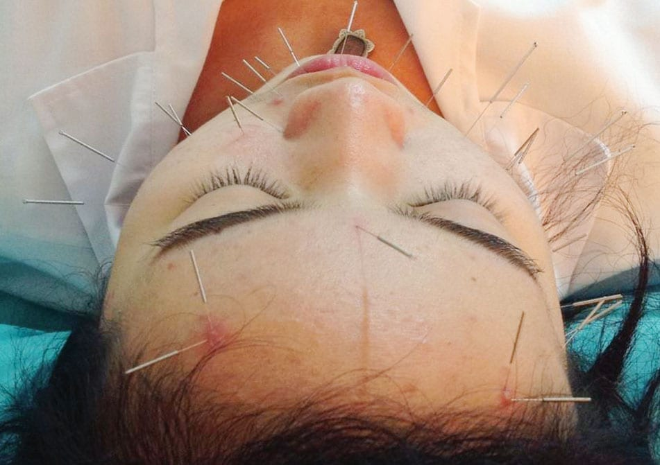 Cosmetic Acupuncture For Facial Rejuvenation