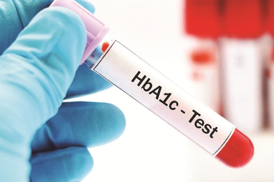 "Testing For Diabetes The ""HbA1c"" Test"