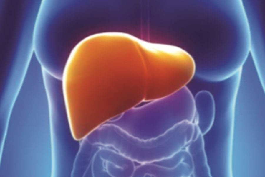 You May Be Prone To Fatty Liver Disease