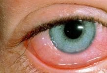 Department of Disease Control Warns of Pinkeye AKA Conjunctivitis