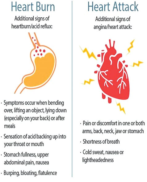Heart Attack Vs Heartburn: The Thin Red Line with Your Life at Stake