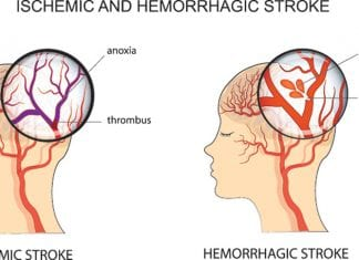 How to Spot a STROKE – Go to Hospital F.A.S.T.
